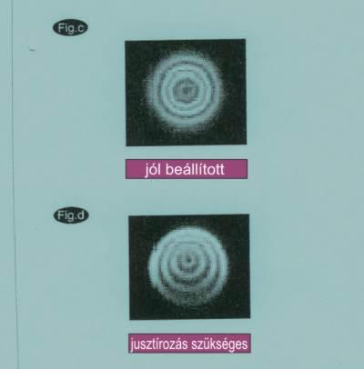 Refrakrotok jusztírozása (beállítása)